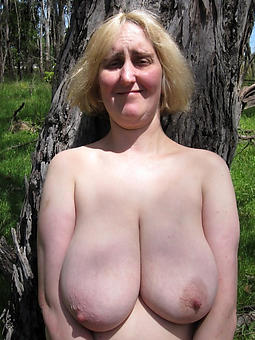 british ex girlfriend bald picture